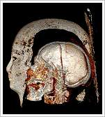 (c)St. Luke's Hospital Foundation - Computertomography of a mummy's skull
